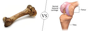 Bone vs Cartilage