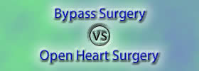 Bypass Surgery vs Open Heart Surgery