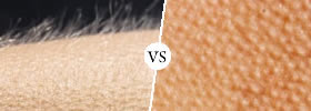 Goose Bumps vs Goose Pimples