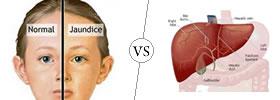 Jaundice vs Hepatitis
