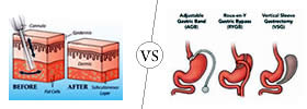 Liposuction vs Bariatric Surgery