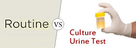 Routine Urine Test vs Culture Urine Test