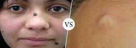 Tumor vs Cyst