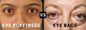 Eye Puffiness vs Eye Bags