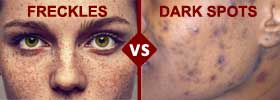 Freckles vs Dark Spots