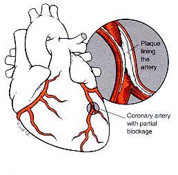 heartburn chest pain dizziness