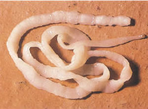 Difference between Earthworm, Tapeworm and Roundworm ...