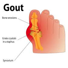lower serum uric acid level using baking soda to reduce uric acid gout patients diet