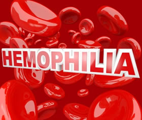 an analysis of the types of hemophilia a blood disease What is hemophilia: hemophilia is a rare condition in which a person's blood does not clot //wwwhemophiliaorg/bleeding-disorders/types-of-bleeding.