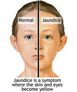 Difference Between Jaundice And Hepatitis Jaundice Vs