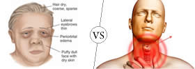 Difference between Cretinism and Hypothyroidism
