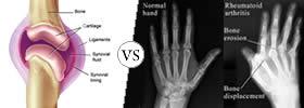 Arthritis vs Rheumatoid Arthritis