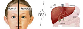 Jaundice vs Hepatitis