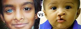 Mutation vs Birth Defect