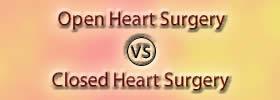 Open Heart Surgery vs Closed Heart Surgery