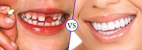 Primary Teeth vs Permanent Teeth