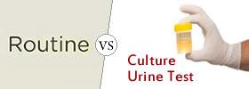 Routine Urine Test vs Culture Urine Test
