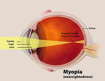 An Introduction to Myopia Control (and the Studies that Support It)