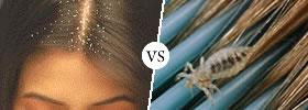 Dandruff vs Lice