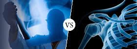 Orthopedics vs Orthopaedics