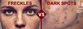 Freckles vs Dark Spots