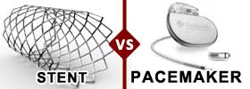Stent vs Pacemaker